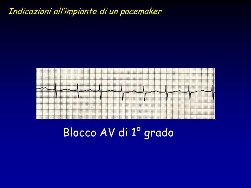 Blocco AV di 1° grado Indicazioni allimpianto di un pacemaker