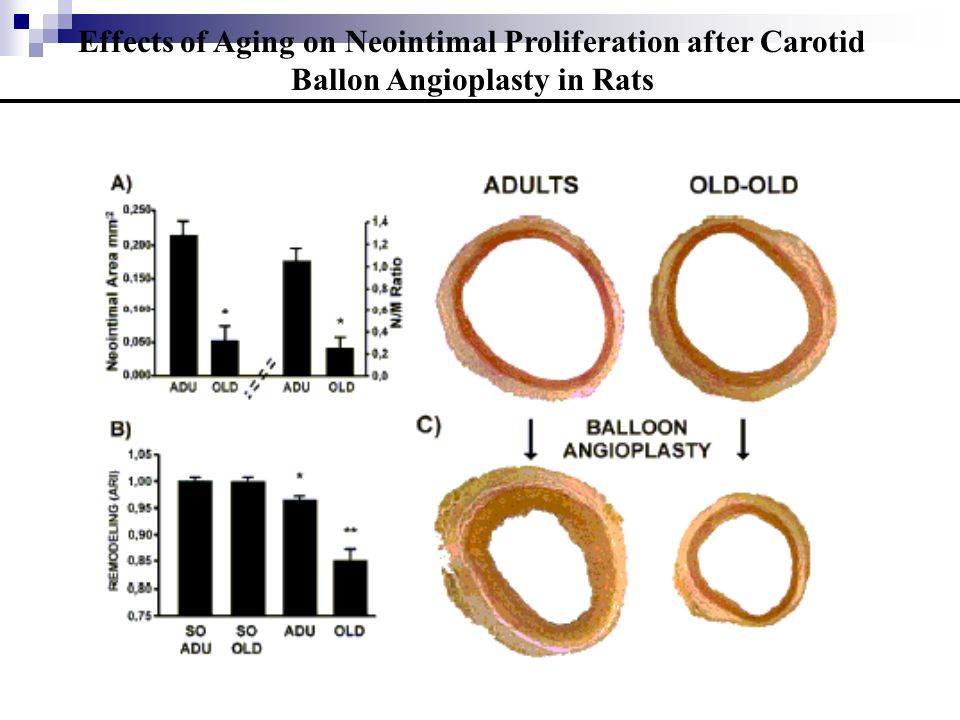 Physical Training Increases eNOS Vascular Expression and Activity and Reduces Restenosis After Balloon Angioplasty in Rats Circ Res, 2002