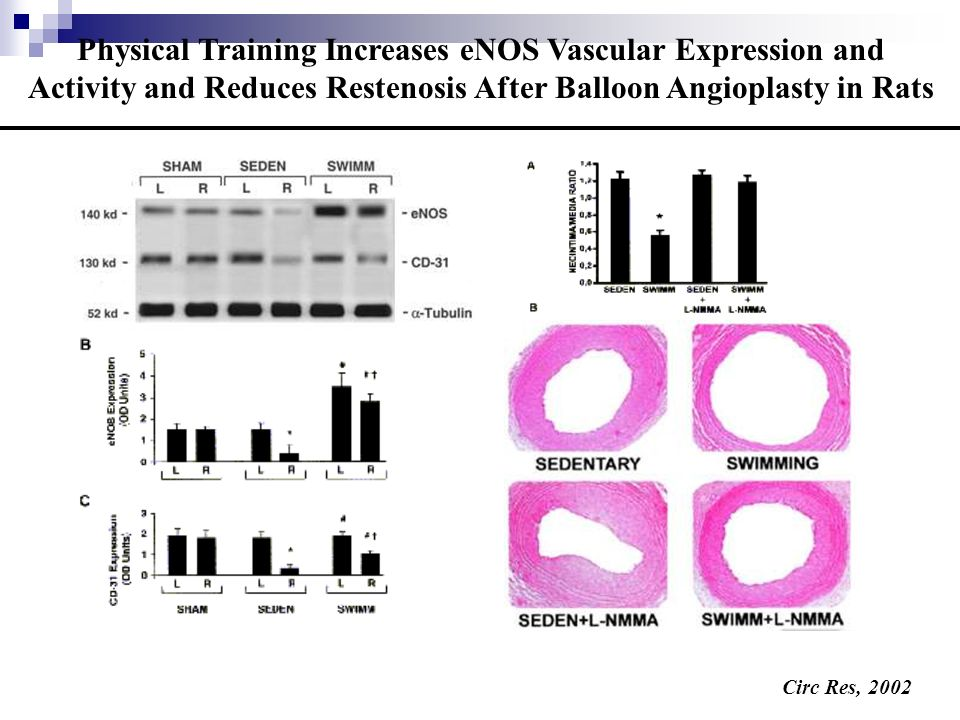Rate of cAMP production (pmol/mg/min) Left Ventricular Adenylyl Cyclase Activity in Young, Sedentary and Trained Old Rats 10μM Iso + 100 μM GTP 100 μM Fluoride ion No additions * * P < 0.01 vs young and old trained
