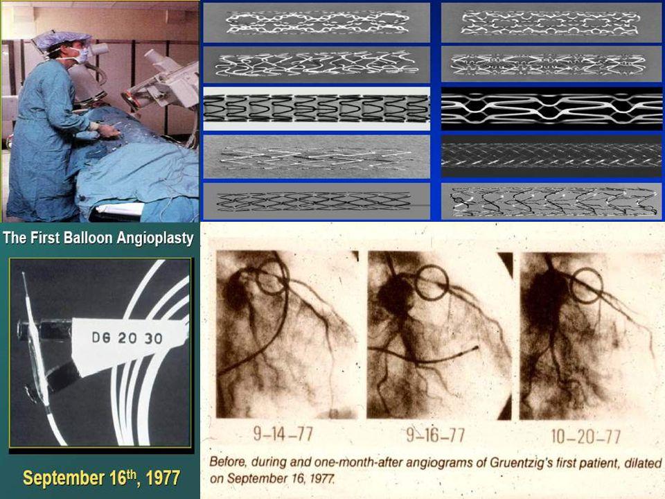 Antiaggreganti Piastrinici dopo Angioplastica Coronarica