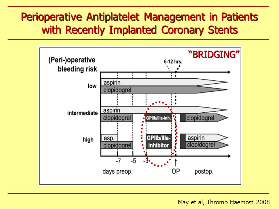 May et al, Thromb Haemost 2008 Perioperative Antiplatelet Management in Patients with Recently Implanted Coronary Stents BRIDGING