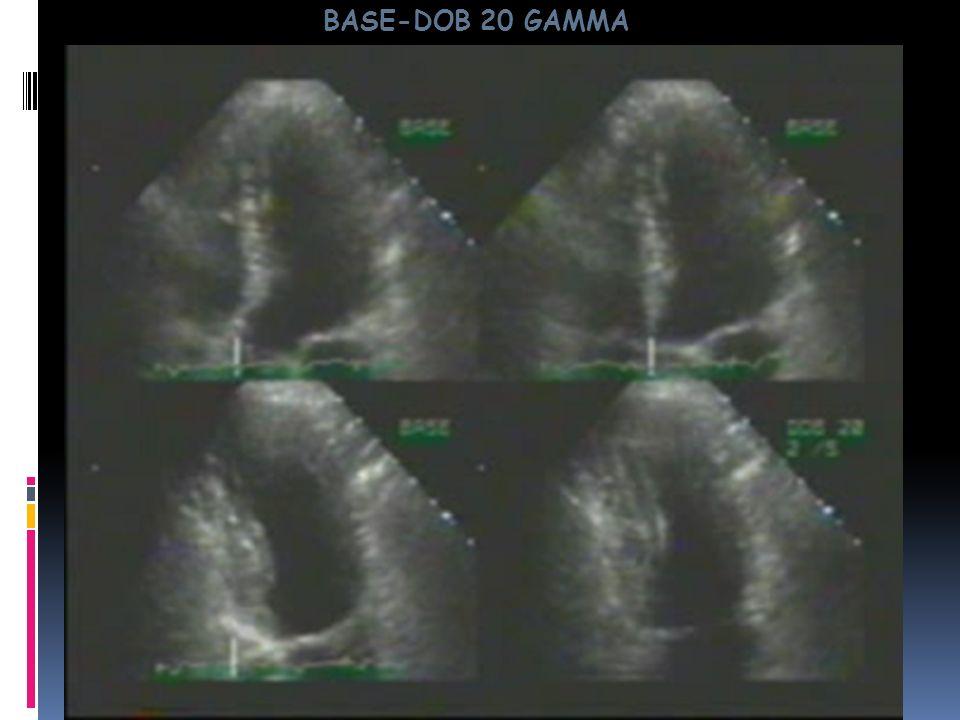STRESS TEST ECODOBUTAMINA INDICAZIONI E sempre più utilizzata nella ricerca dellischemia miocardica.