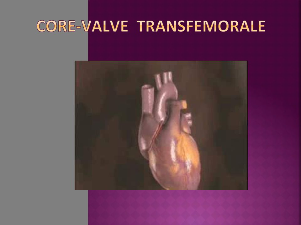 Core-valve con isolamento arteria succlavia destra Core-valve e Sapien trans-aortiche in mini toracotomia destra via retrograda da Aorta ascendente