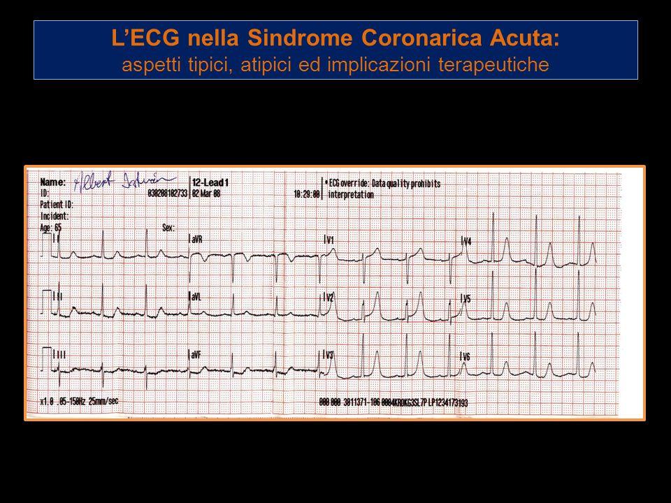 LECG nella Sindrome Coronarica Acuta: aspetti tipici, atipici ed implicazioni terapeutiche