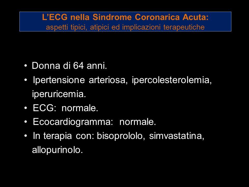 LECG nella Sindrome Coronarica Acuta: aspetti tipici, atipici ed implicazioni terapeutiche Donna di 64 anni. Ipertensione arteriosa, ipercolesterolemi