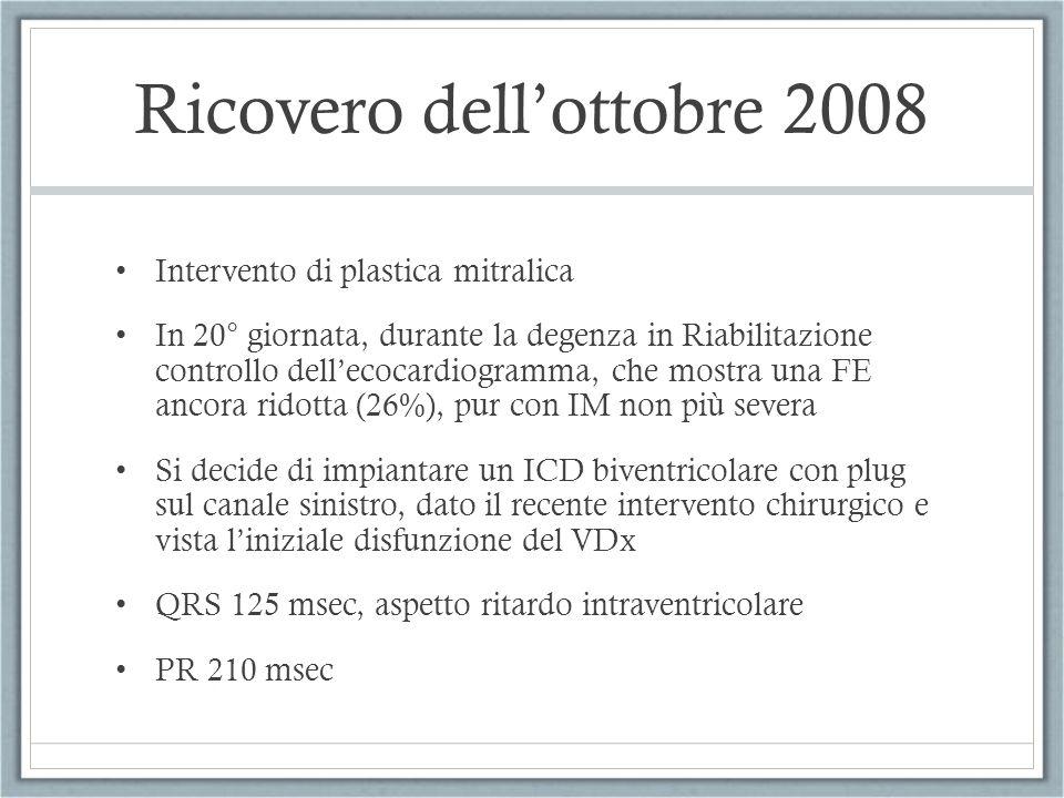 Ricovero dellottobre 2008 Intervento di plastica mitralica In 20° giornata, durante la degenza in Riabilitazione controllo dellecocardiogramma, che mo