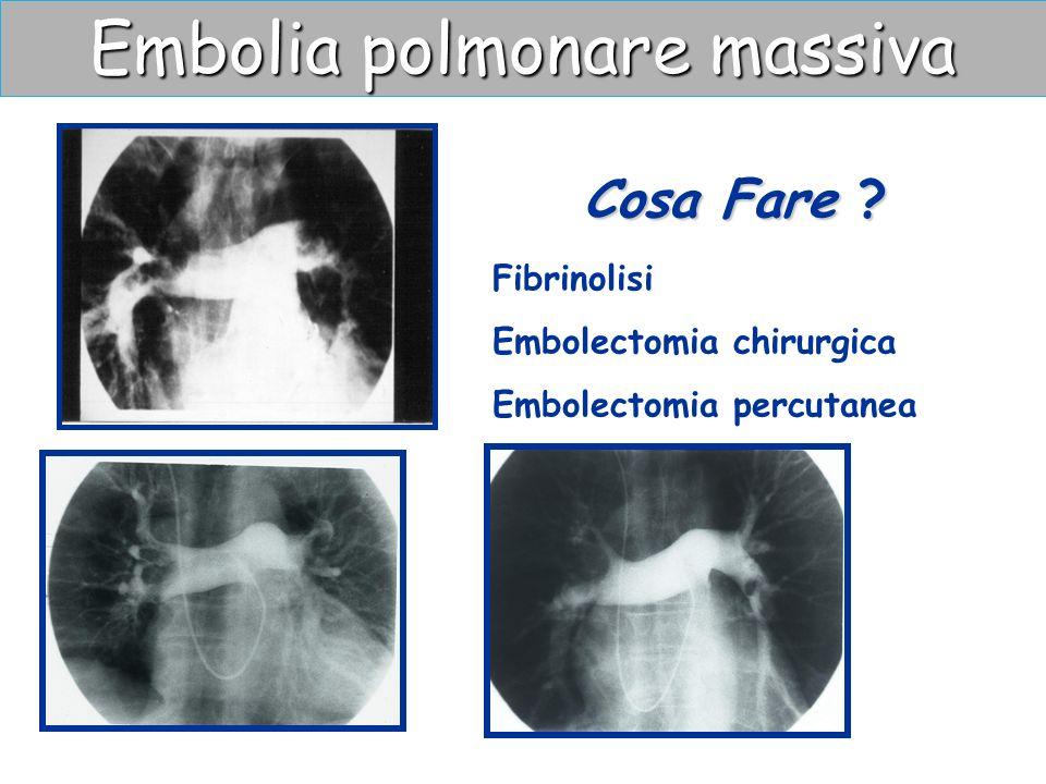 Embolia polmonare massiva Cosa Fare ? Fibrinolisi Embolectomia chirurgica Embolectomia percutanea