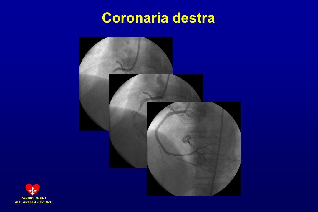 CARDIOLOGIA 1 AO CAREGGI - FIRENZE Coronaria destra