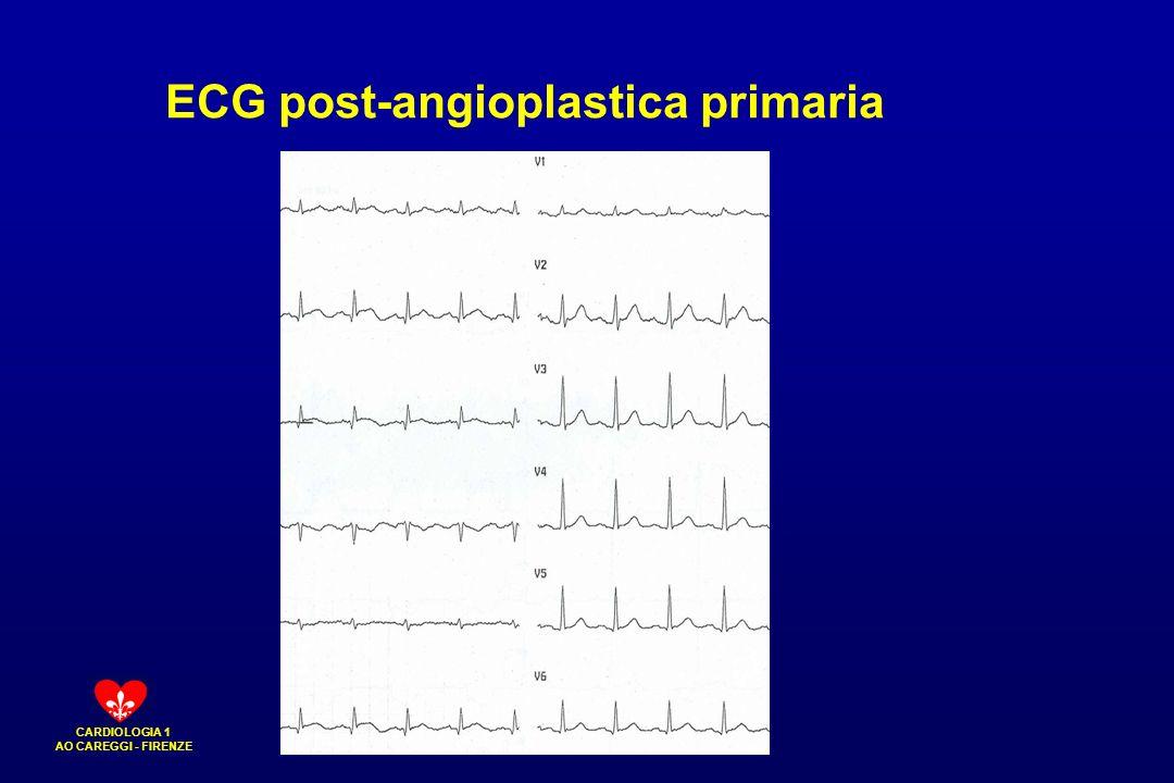 CARDIOLOGIA 1 AO CAREGGI - FIRENZE ECG post-angioplastica primaria