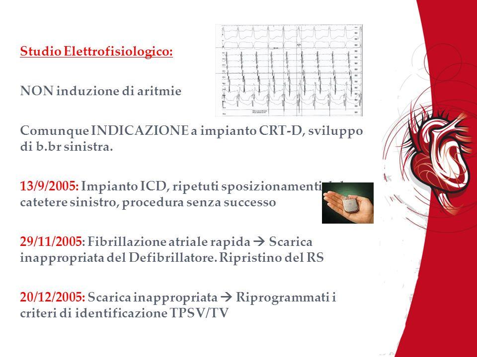 Studio Elettrofisiologico: NON induzione di aritmie Comunque INDICAZIONE a impianto CRT-D, sviluppo di b.br sinistra. 13/9/2005: Impianto ICD, ripetut
