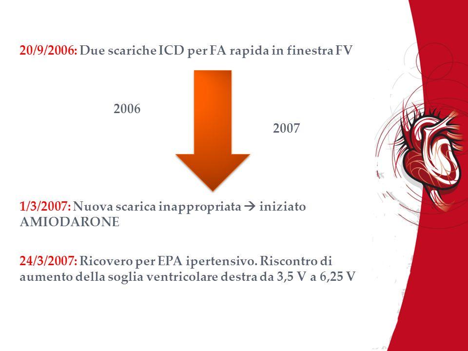 20/9/2006: Due scariche ICD per FA rapida in finestra FV 2006 2007 1/3/2007: Nuova scarica inappropriata iniziato AMIODARONE 24/3/2007: Ricovero per E