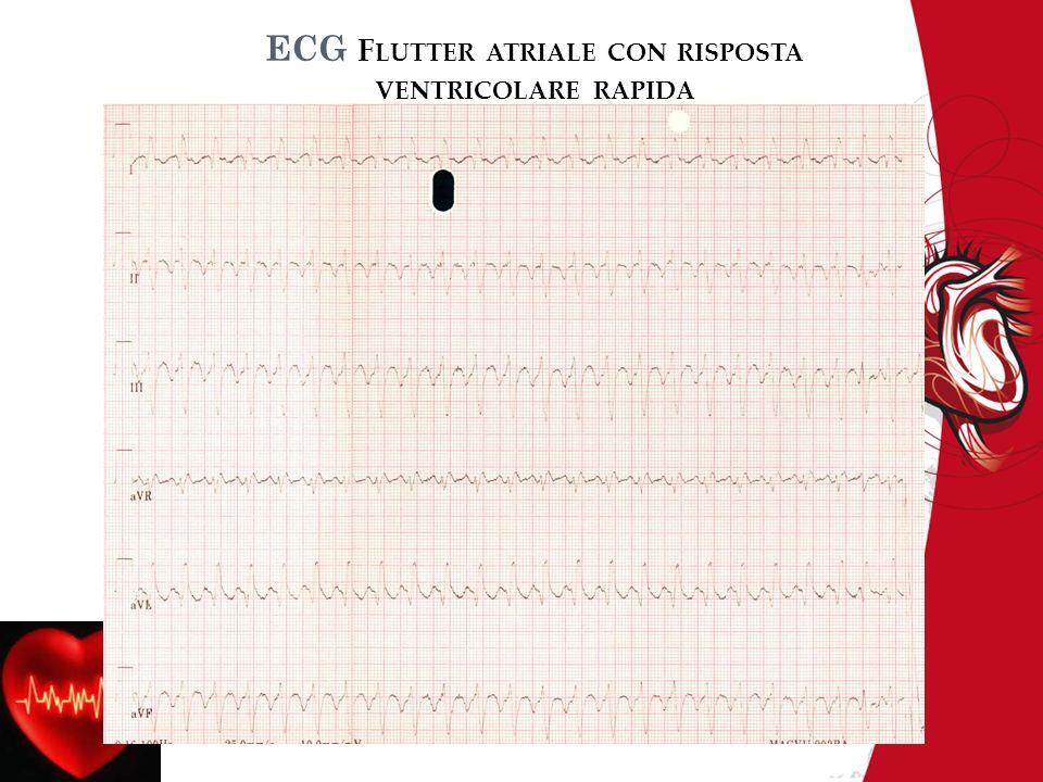 ECG F LUTTER ATRIALE CON RISPOSTA VENTRICOLARE RAPIDA