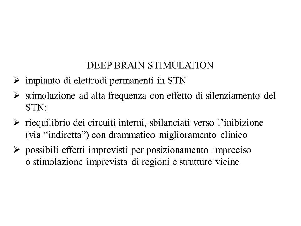 DEEP BRAIN STIMULATION impianto di elettrodi permanenti in STN stimolazione ad alta frequenza con effetto di silenziamento del STN: riequilibrio dei c