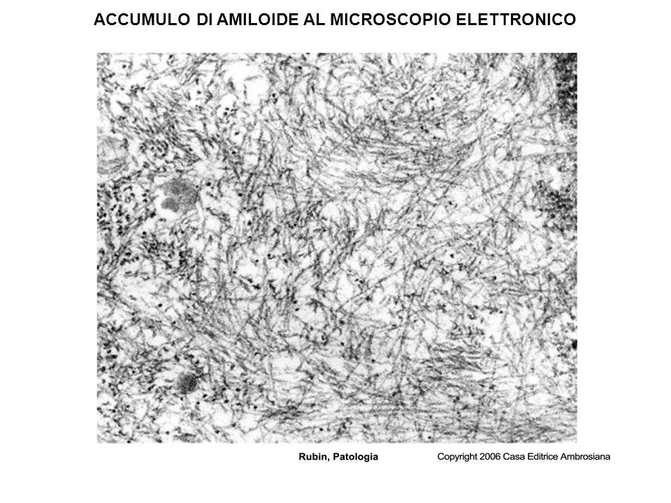 ACCUMULO DI AMILOIDE AL MICROSCOPIO ELETTRONICO