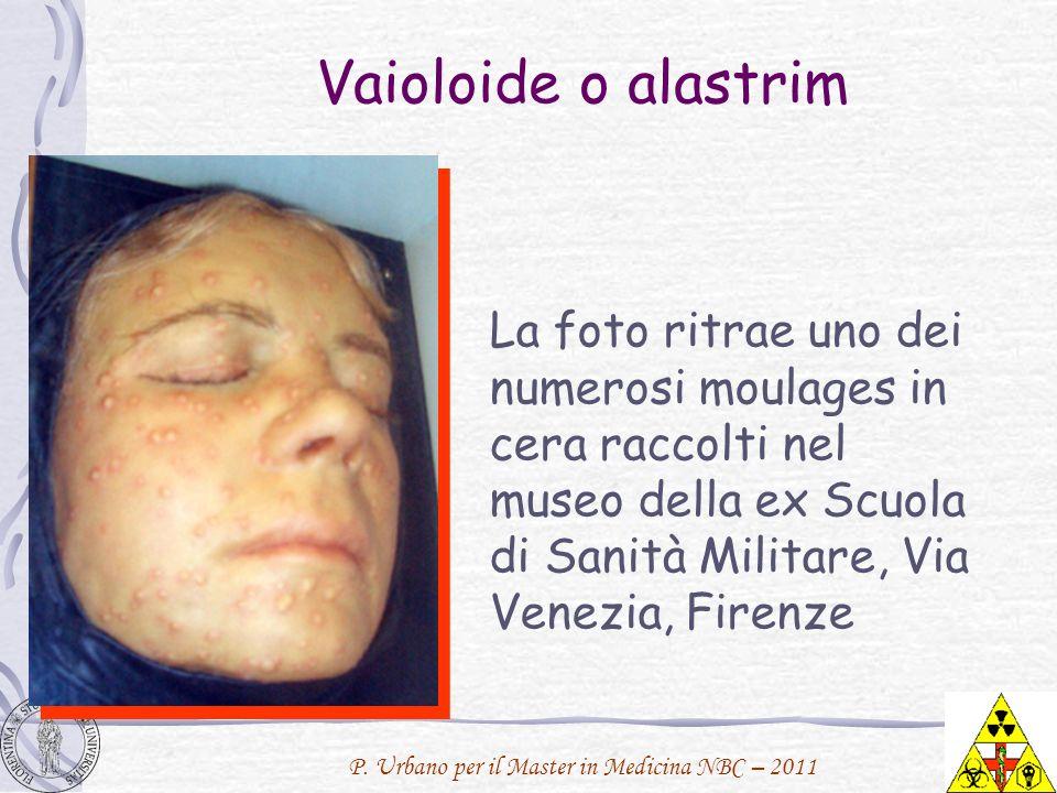 P. Urbano per il Master in Medicina NBC – 2011 Vaioloide o alastrim La foto ritrae uno dei numerosi moulages in cera raccolti nel museo della ex Scuol