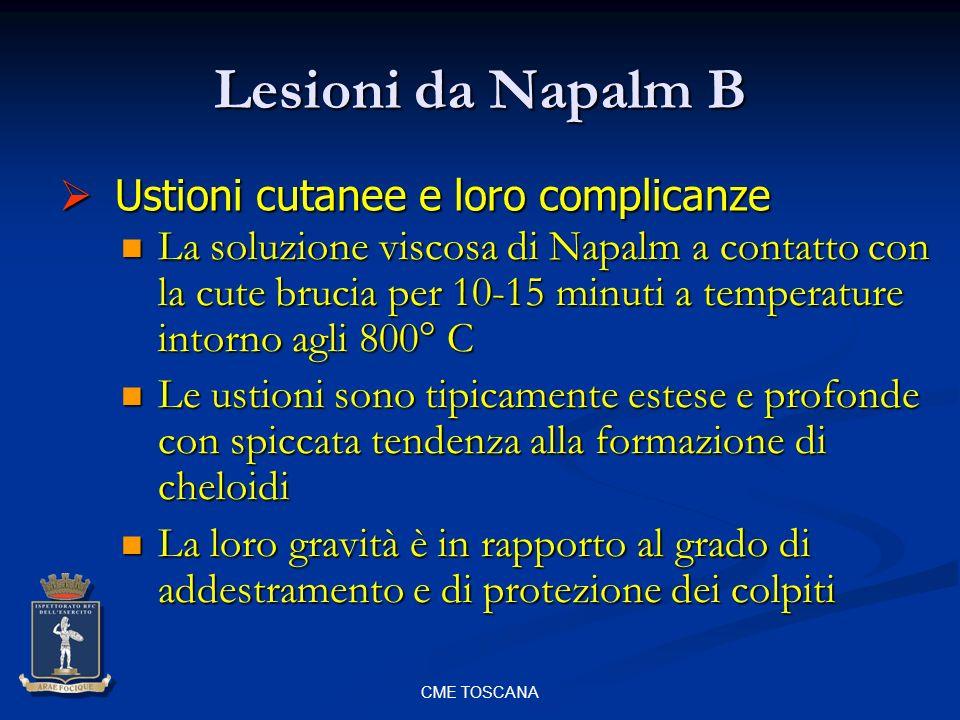 CME TOSCANA Lesioni da Napalm B La soluzione viscosa di Napalm a contatto con la cute brucia per 10-15 minuti a temperature intorno agli 800° C La sol