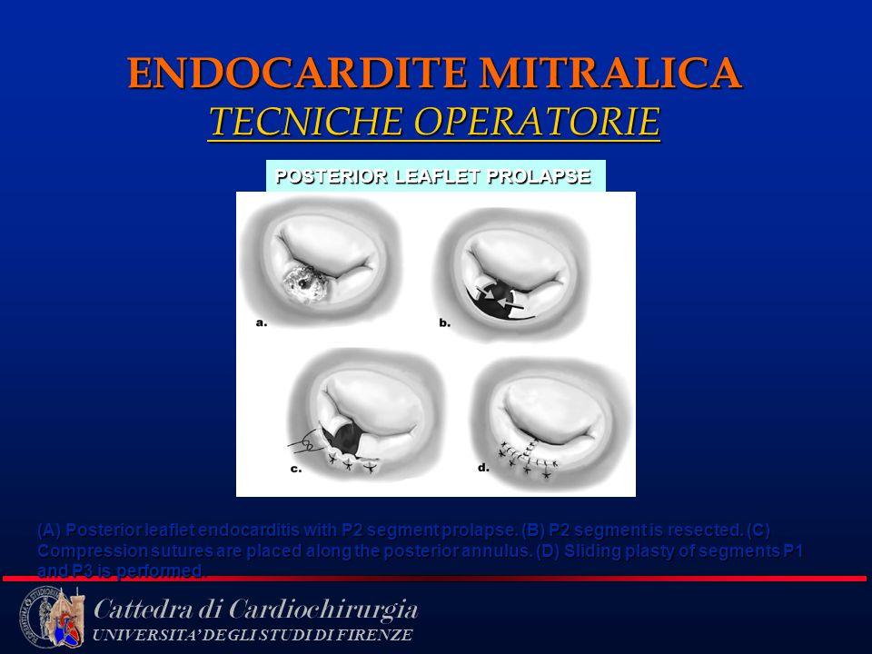 Cattedra di Cardiochirurgia UNIVERSITA DEGLI STUDI DI FIRENZE ENDOCARDITE MITRALICA TECNICHE OPERATORIE (A) Posterior leaflet endocarditis with P2 seg