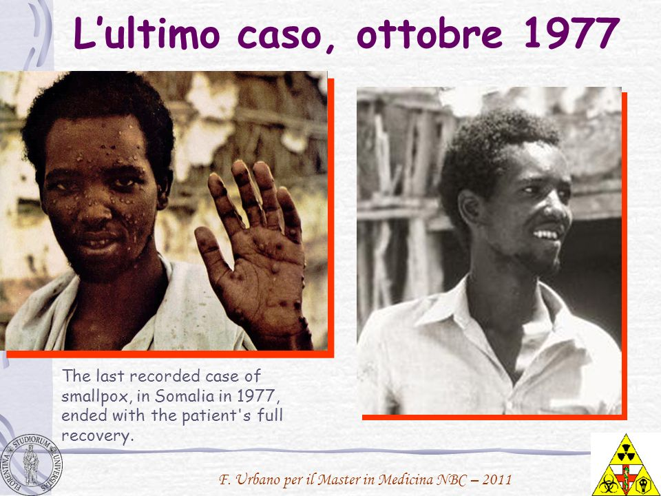 Lultimo caso, ottobre 1977 The last recorded case of smallpox, in Somalia in 1977, ended with the patient's full recovery.
