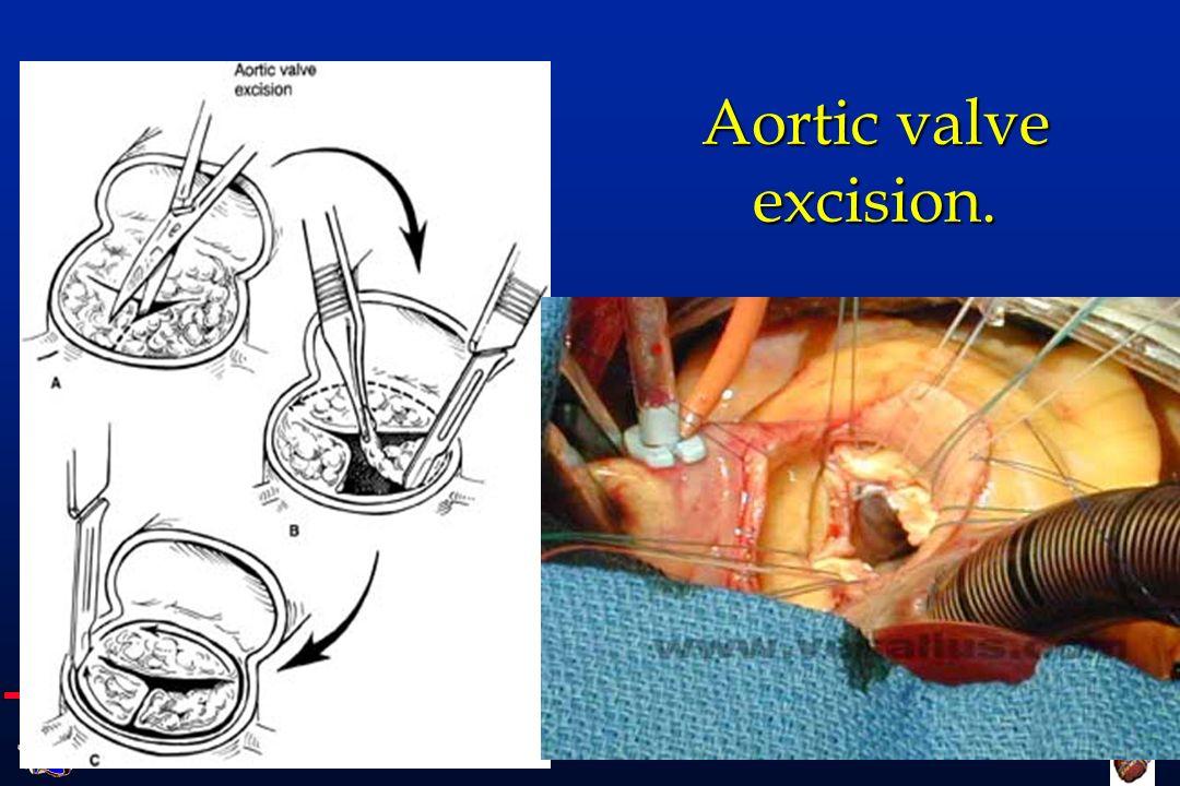 Cattedra di Cardiochirurgia UNIVERSITA DEGLI STUDI DI FIRENZE postoperative bloodflow ConventionalStentless
