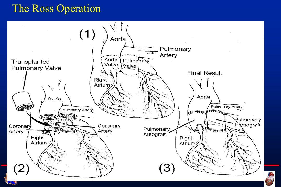 Cattedra di Cardiochirurgia UNIVERSITA DEGLI STUDI DI FIRENZE The Ross Operation