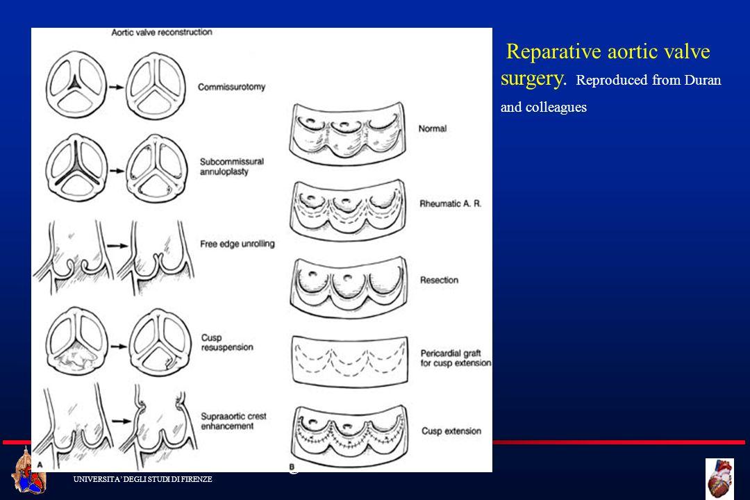 Cattedra di Cardiochirurgia UNIVERSITA DEGLI STUDI DI FIRENZE Reparative aortic valve surgery. Reproduced from Duran and colleagues