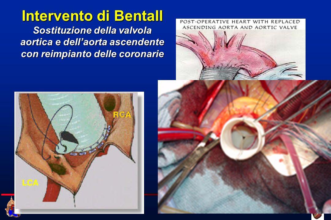 Cattedra di Cardiochirurgia UNIVERSITA DEGLI STUDI DI FIRENZE Intervento di Bentall Sostituzione della valvola aortica e dellaorta ascendente con reim