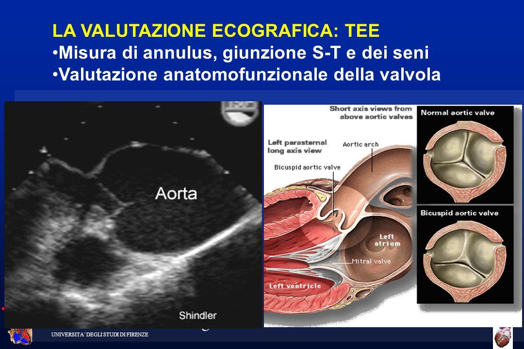 Cattedra di Cardiochirurgia UNIVERSITA DEGLI STUDI DI FIRENZE LA VALUTAZIONE ECOGRAFICA: TEE Misura di annulus, giunzione S-T e dei seni Valutazione a
