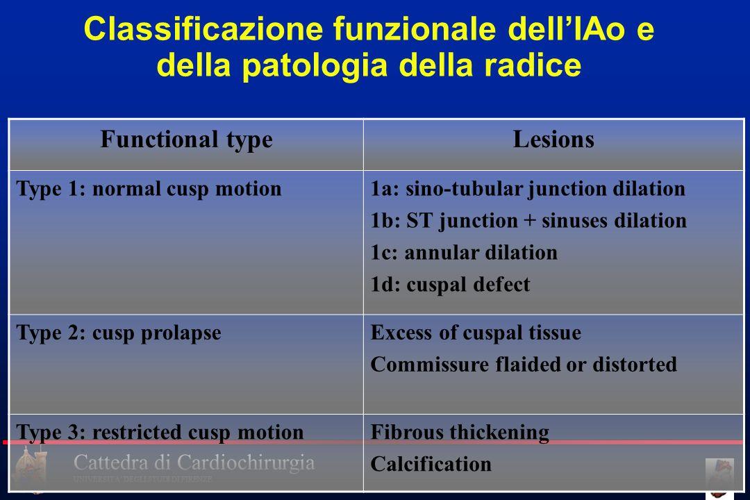 Cattedra di Cardiochirurgia UNIVERSITA DEGLI STUDI DI FIRENZE Functional typeLesions Type 1: normal cusp motion1a: sino-tubular junction dilation 1b: