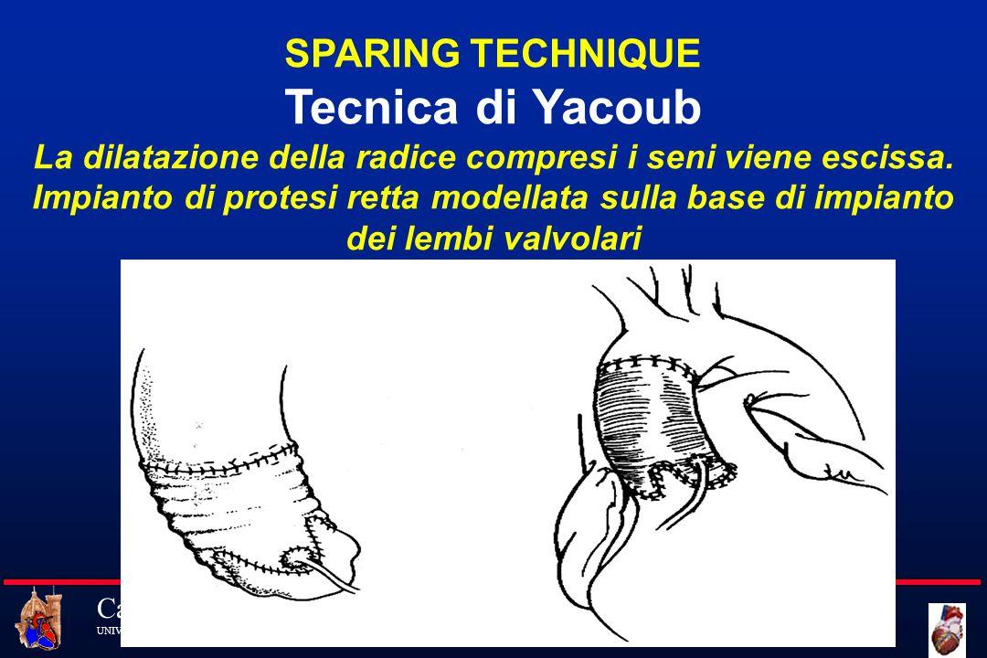Cattedra di Cardiochirurgia UNIVERSITA DEGLI STUDI DI FIRENZE SPARING TECHNIQUE Tecnica di Yacoub La dilatazione della radice compresi i seni viene es