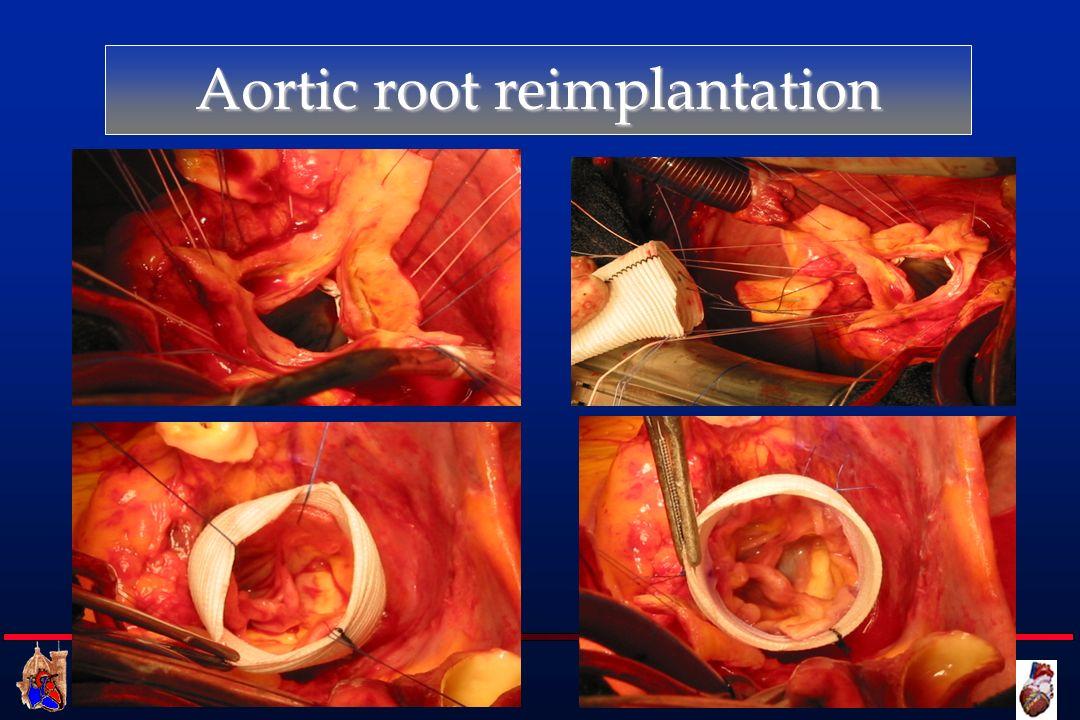 Cattedra di Cardiochirurgia UNIVERSITA DEGLI STUDI DI FIRENZE Aortic root reimplantation
