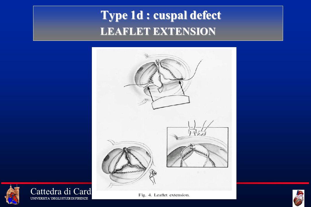 Cattedra di Cardiochirurgia UNIVERSITA DEGLI STUDI DI FIRENZE Type 1d : cuspal defect Type 1d : cuspal defect LEAFLET EXTENSION