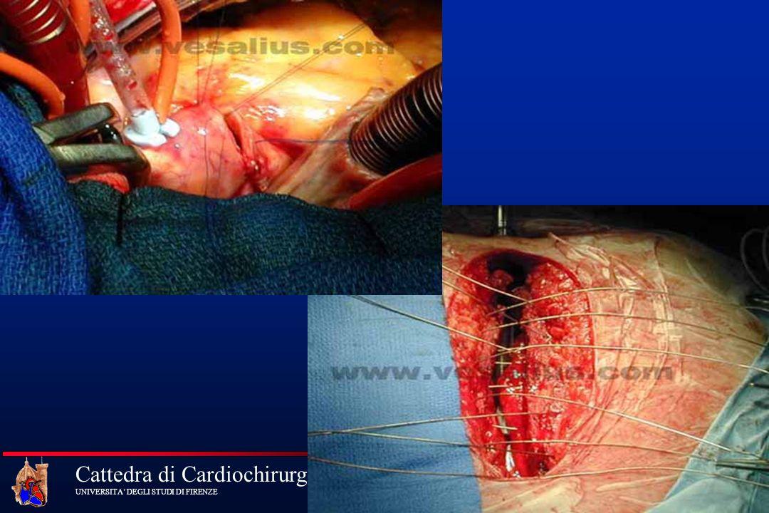 Cattedra di Cardiochirurgia UNIVERSITA DEGLI STUDI DI FIRENZE Indicazioni Chirurgiche specifiche nella sindrome di Marfan Diametro della radice aortica 45mm Anamnesi familiare positiva per dissezione e diametro della radice 40 mm Rischio personalizzato