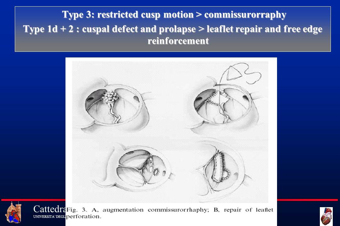 Cattedra di Cardiochirurgia UNIVERSITA DEGLI STUDI DI FIRENZE Type 3: restricted cusp motion > commissurorraphy Type 3: restricted cusp motion > commi