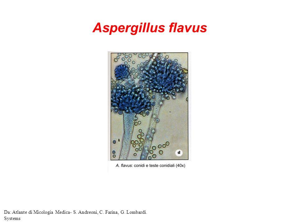 Aspergillus flavus Da: Atlante di Micologia Medica- S. Andreoni, C. Farina, G. Lombardi. Systems