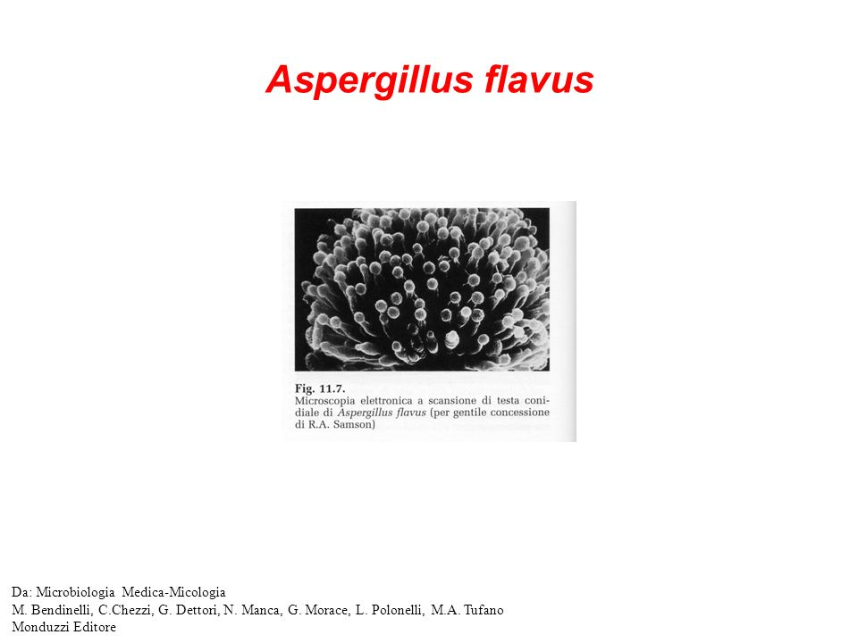 Aspergillus flavus Da: Microbiologia Medica-Micologia M.