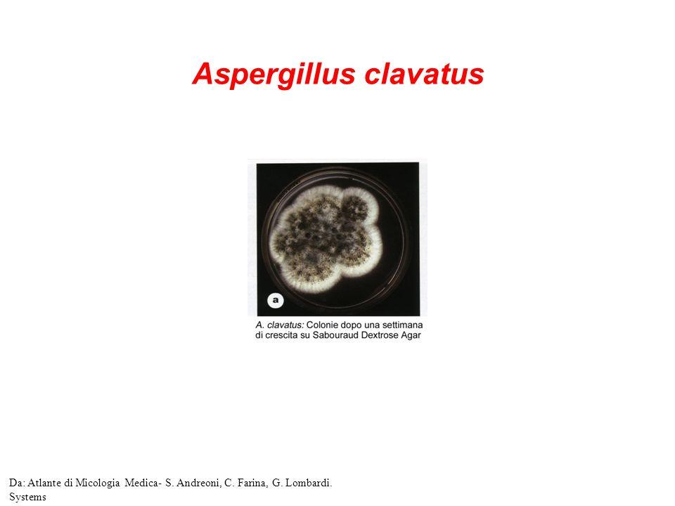 Aspergillus clavatus Da: Atlante di Micologia Medica- S. Andreoni, C. Farina, G. Lombardi. Systems
