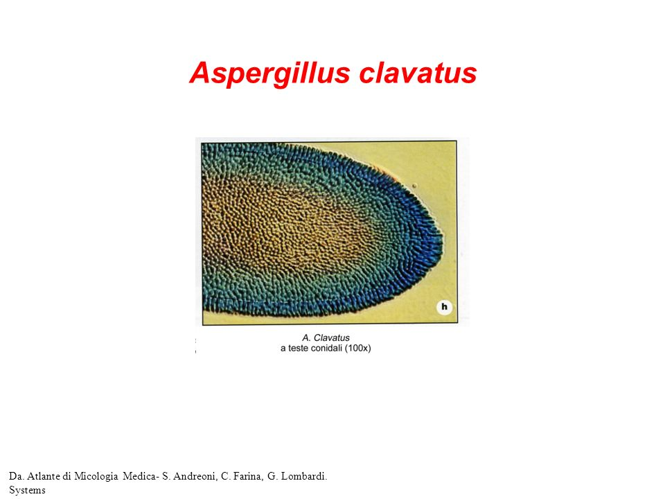 Aspergillus clavatus Da. Atlante di Micologia Medica- S. Andreoni, C. Farina, G. Lombardi. Systems