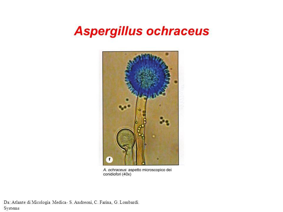 Aspergillus ochraceus Da: Atlante di Micologia Medica- S. Andreoni, C. Farina, G. Lombardi. Systems
