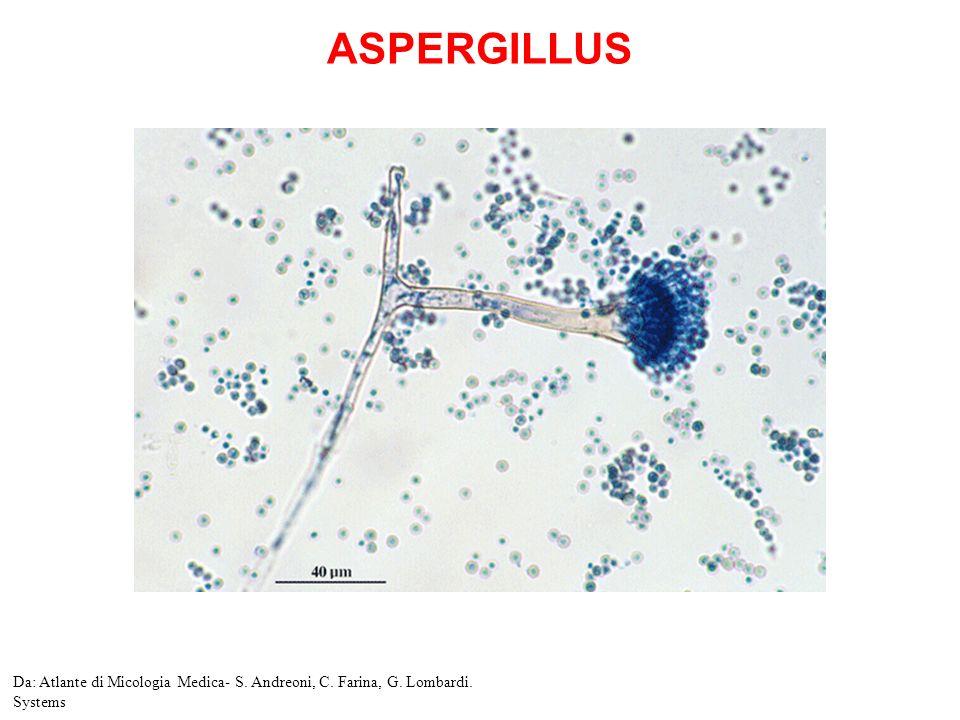 Aspergillus clavatus Micete a distribuzione ubiquitaria Raramente patogeno per luomo Può essere causa di onicomicosi