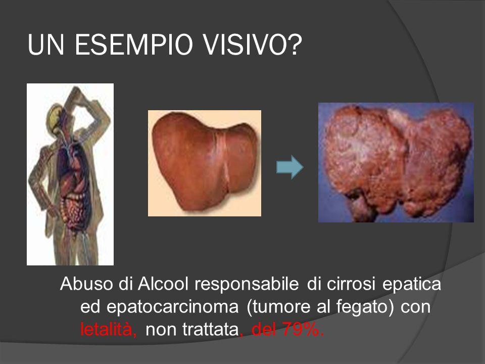 UN ESEMPIO VISIVO? Abuso di Alcool responsabile di cirrosi epatica ed epatocarcinoma (tumore al fegato) con letalità, non trattata, del 79%.
