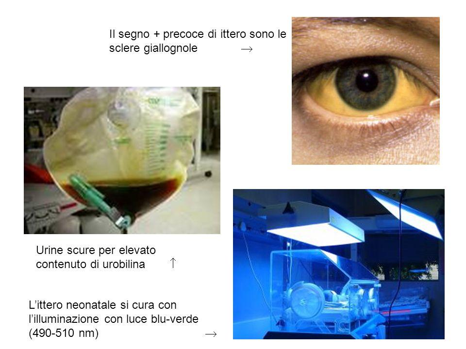 Il segno + precoce di ittero sono le sclere giallognole Urine scure per elevato contenuto di urobilina Littero neonatale si cura con lilluminazione co