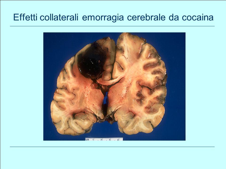 83 Effetti collaterali emorragia cerebrale da cocaina