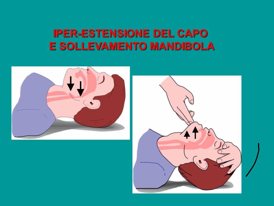 IPER-ESTENSIONE DEL CAPO E SOLLEVAMENTO MANDIBOLA