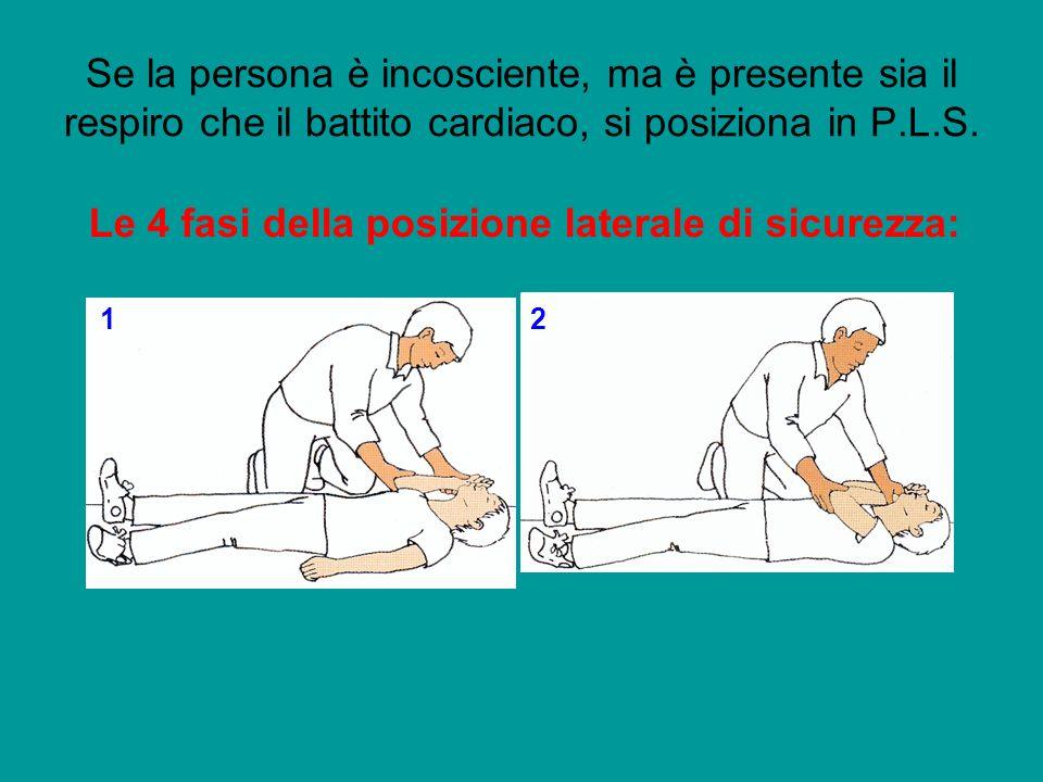 Le 4 fasi della posizione laterale di sicurezza: 12 Se la persona è incosciente, ma è presente sia il respiro che il battito cardiaco, si posiziona in