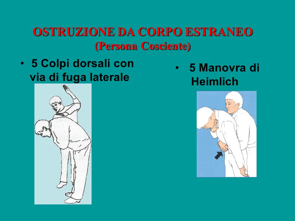 OSTRUZIONE DA CORPO ESTRANEO (Persona Cosciente) 5 Colpi dorsali con via di fuga laterale 5 Manovra di Heimlich