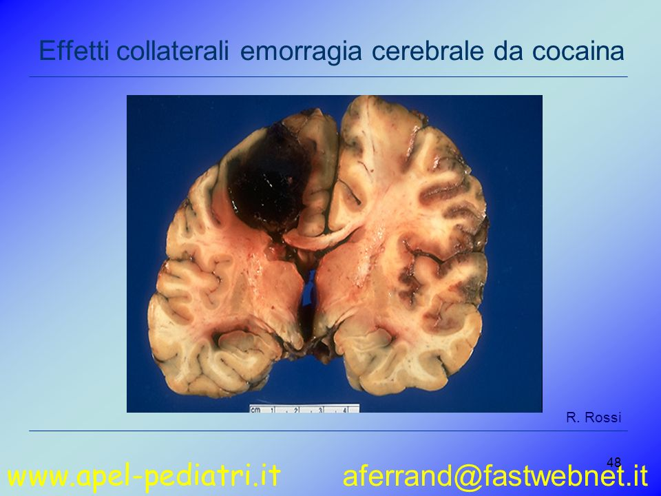 www.apel-pediatri.it aferrand@fastwebnet.it 48 Effetti collaterali emorragia cerebrale da cocaina R.