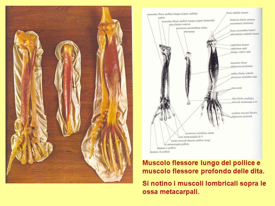 Muscolo flessore lungo del pollice e muscolo flessore profondo delle dita. Si notino i muscoli lombricali sopra le ossa metacarpali.