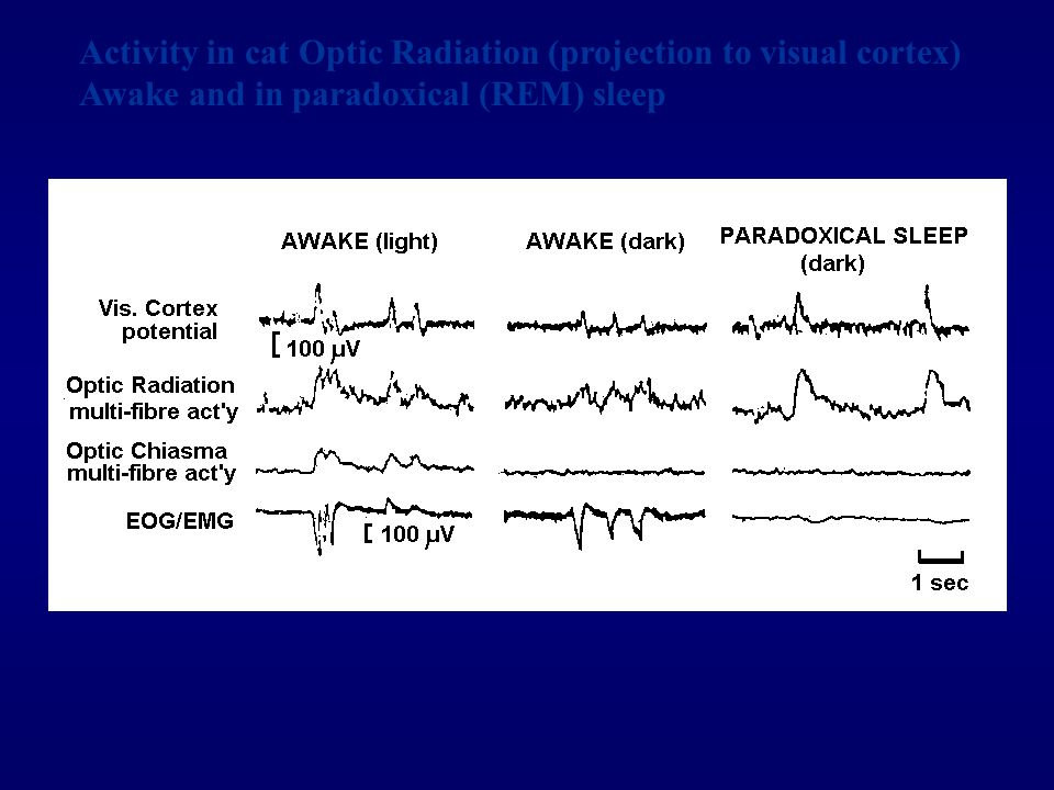 Activity in cat Optic Radiation (projection to visual cortex) Awake and in paradoxical (REM) sleep