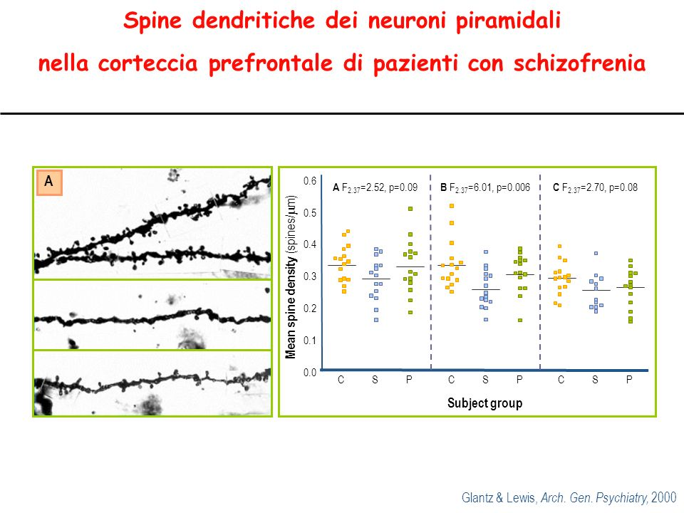 Spine dendritiche dei neuroni piramidali nella corteccia prefrontale di pazienti con schizofrenia Glantz & Lewis, Arch.