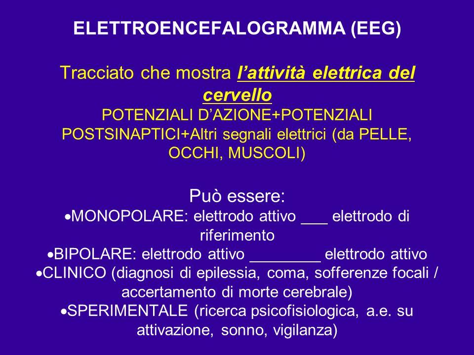 PRINCIPALI CARATTERISTICHE DELLE ONDE EEG 1.